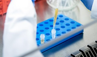 Binnen dag uitslag van coronatest, zegt GGD Kennemerland