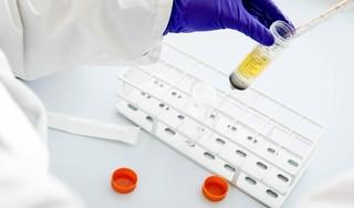 Ruim 90 procent donors heeft antistoffen tegen corona in bloed